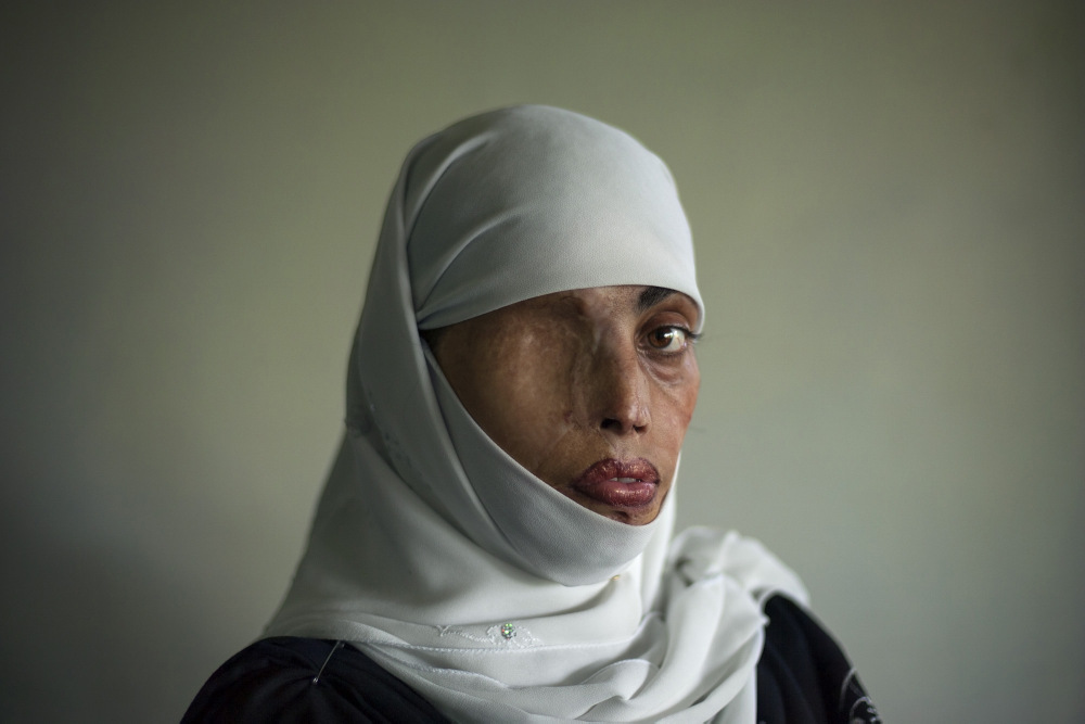 1-EMILIO MORENATTI. Busha Shari, atacada con ácido por su marido. Islamabad. Pakistan 2008